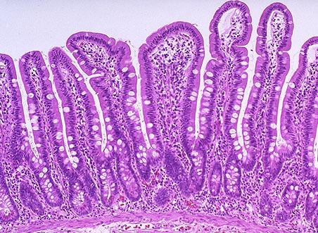 Микозата погледната през микроскоп